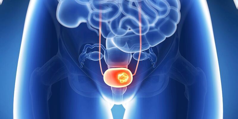 Mesane tümörleri nasıl tedavi edilir?