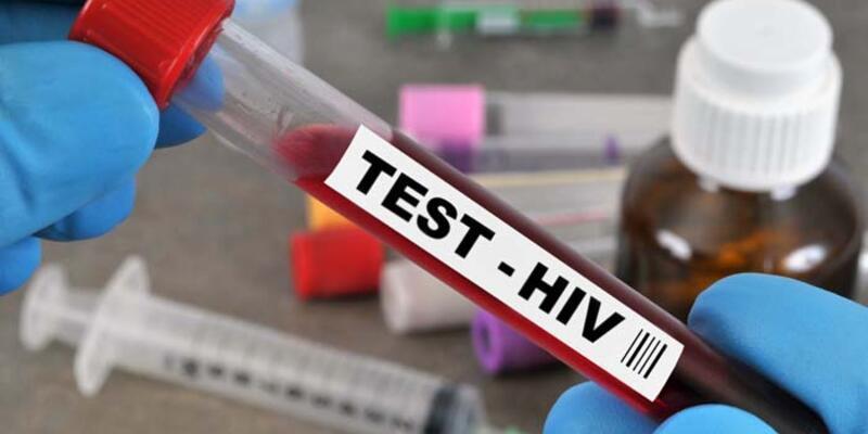 Aids Testi Nedir? Nasıl Ve Nerede Yapılır? Aids Testi Ne Zaman Yapılmalı?