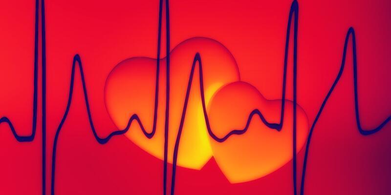 Koroner Arter Hastalığı Nedir? Koroner Arter Hastalığı Belirtileri Ve Tedavi Yöntemleri