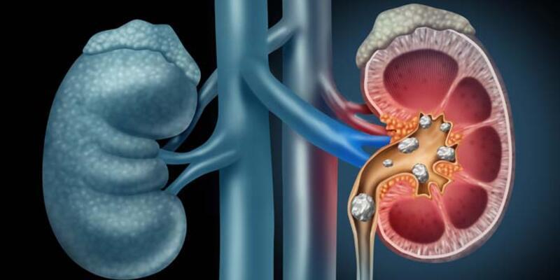 Nefroloji Nedir? Nefroloji Hangi Hastalıklara Bakar? Uzmanı Ve Doktoru Neye Bakar?