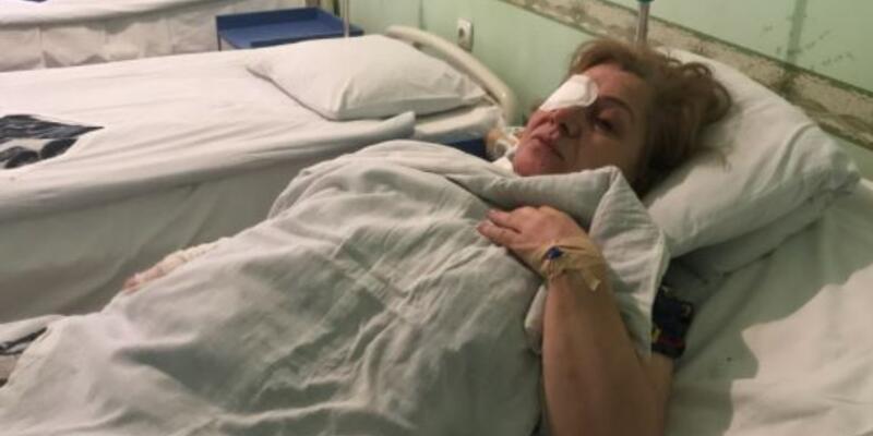 Son dakika haberleri.. Gence saldırısında yaralanan kadın yaşadıklarını anlattı