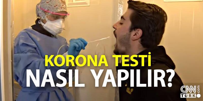 Koronavirüs testi nasıl yapılır, sonucu kaç günde çıkar, pozitif çıkanlar ne yapmalı?