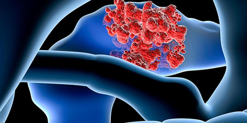 Pankreas kanserinin görülme sıklığı artıyor