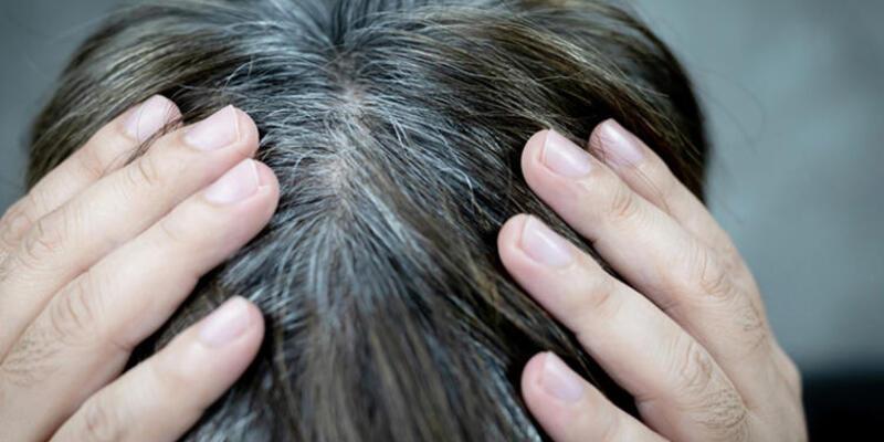 Saçları beyazlatan 6 neden