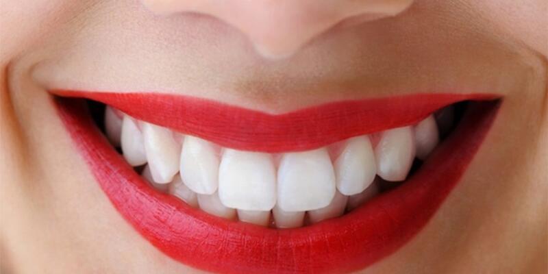 Dişleri Kestirmek mi? İmplant mı?
