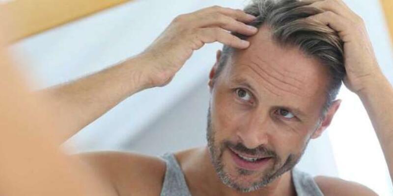 Stres erkeklerde saçları döküyor !