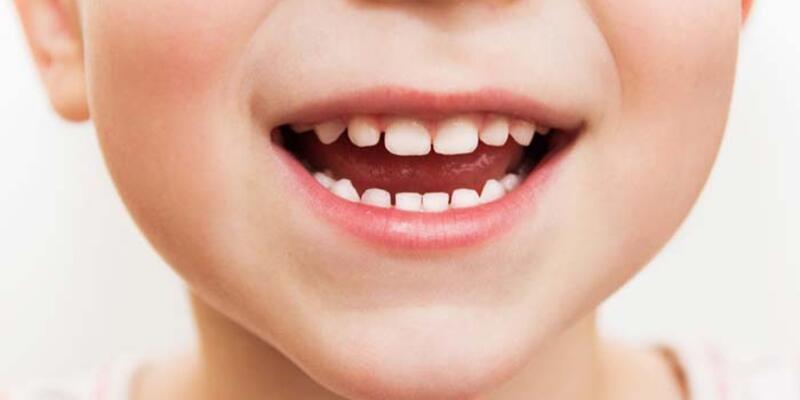 Süt dişi çürükleri tedavi edilmeli