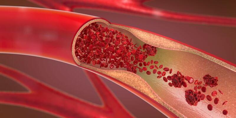 Trombosit düşüklüğü nedir?