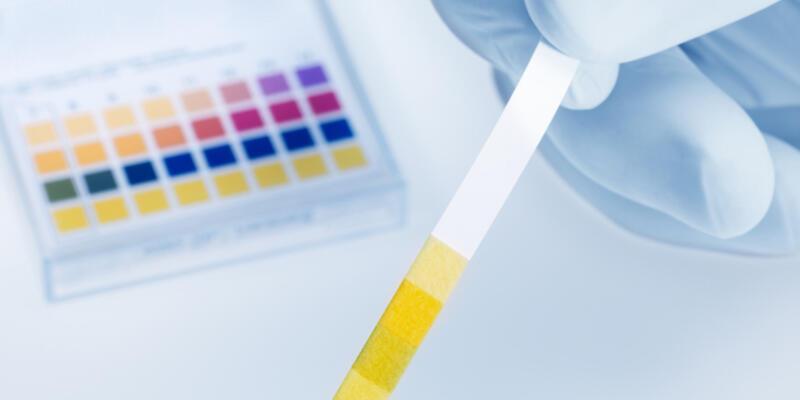 İdrarda Protein Kaçağı Nedir, Neden Olur? Protein Kaçağının Zararları Nelerdir?