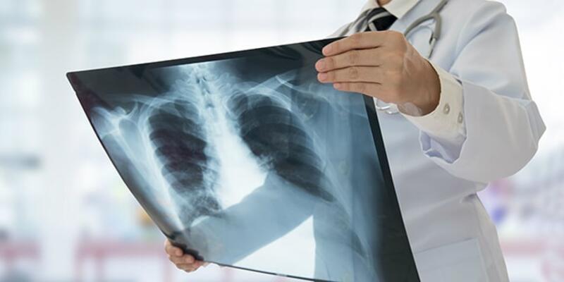 Akciğer Enfeksiyonu Nedir, Neden Olur? Akciğer Enfeksiyonu Tedavisi Nasıl Yapılır?