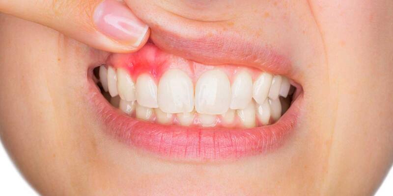 Diş Eti İltihabı Nedir, Neden Olur? Diş Eti İltihabına Ne İyi Gelir, Nasıl Geçer?