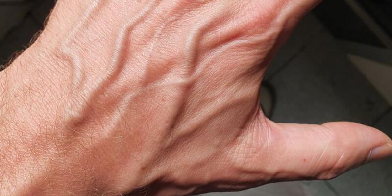 el ustundeki damar agrisi neden olur