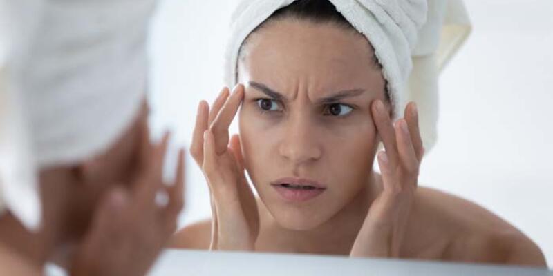 Aşırı stres yapmak kaş problemine neden oluyor