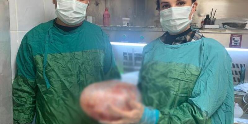 Karnındaki 5 kiloluk tümör, ameliyatla alındı