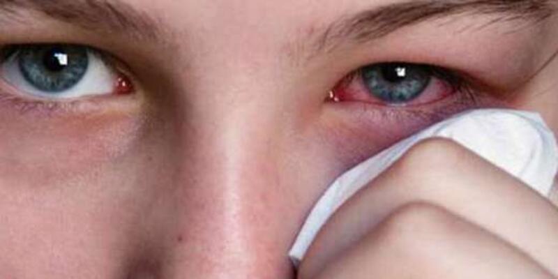 Göz Yanması Neden Olur, Nasıl Geçer? Göz Yanmasına Ne İyi Gelir