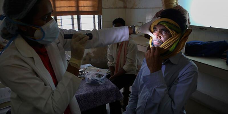 Koronaya ağır kayıplar veren Hindistan'da yeni salgın paniği: 'Kara mantar'