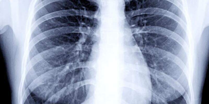 Karaciğer tutulumu olan insanlar dikkat
