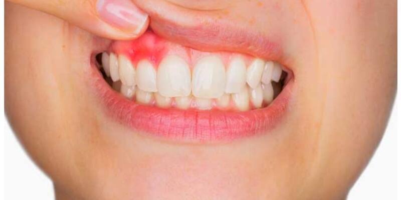 Diş etinde kırmızılık ve şişkinliğe dikkat