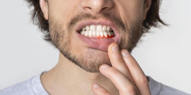 Uzmanı uyardı: Ağızdaki yaralar dil kanseri işareti olabilir