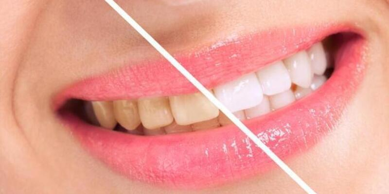 Sararmış dişleri beyaz dişler haline getirmenin 4 yolu