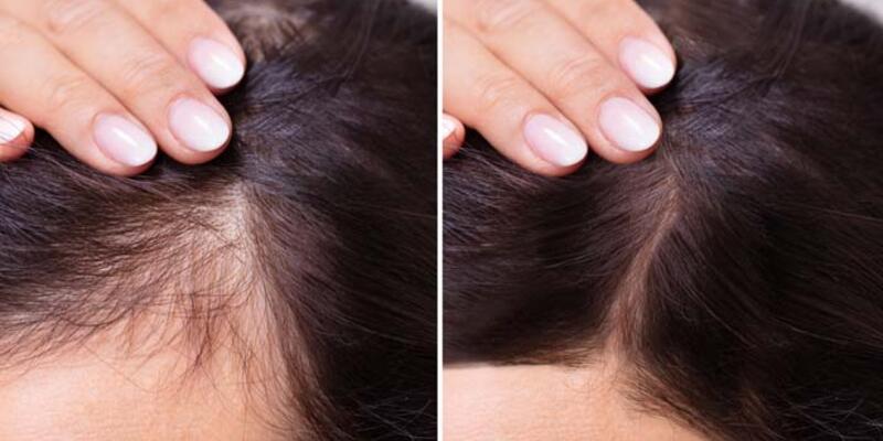Saç dökülmesi kök hücre yöntemiyle engellenebilir