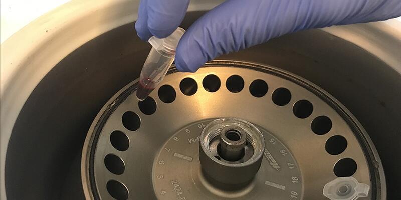 Serebral palsi tanısı için 'genetik test yaptırın' uyarısı