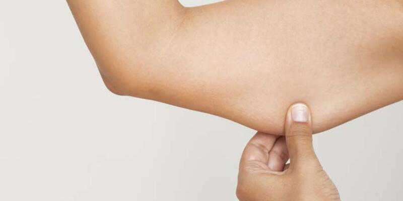 Uyluk ve kol sarkmalarından kurtulmanın yolları