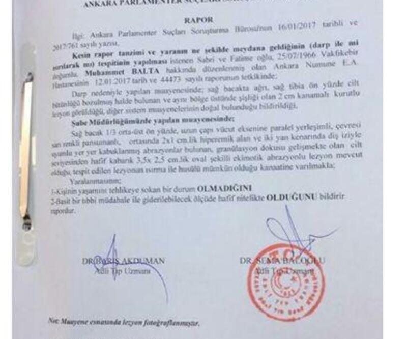 Adli Tıp 'AK Parti Trabzon Milletvekili ısırıldı' dedi