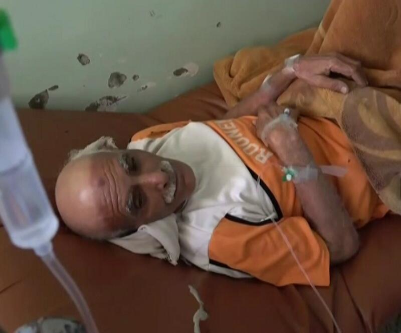 Yemen'de kolera salgını kontrolden çıktı