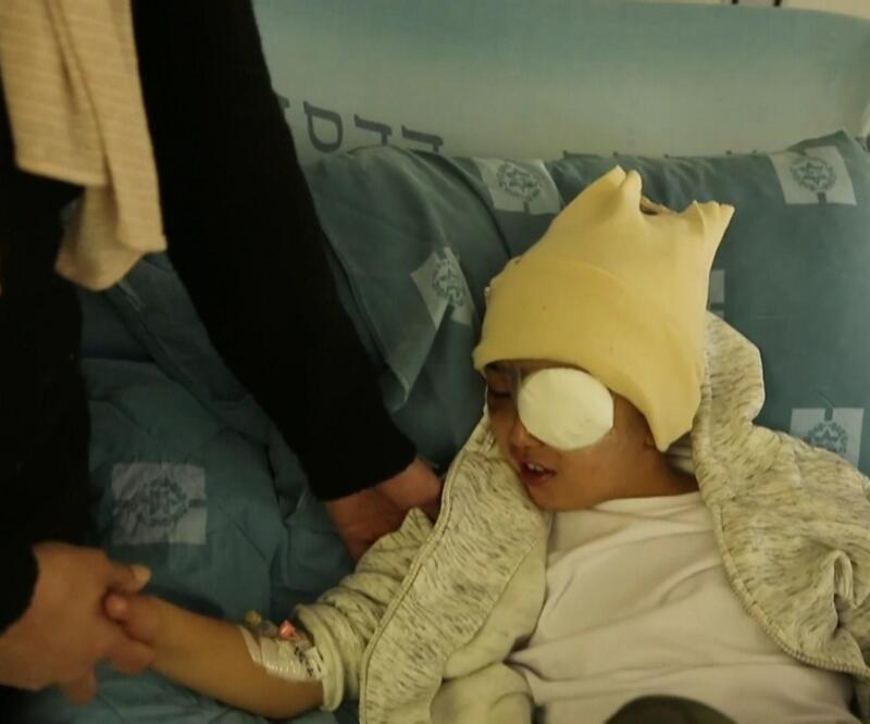 İsrail saldırdı 9 yaşındaki Filistinli Malik gözünü kaybetti